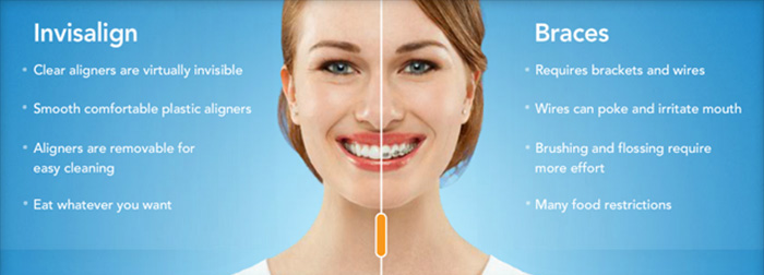Invisalign vs braces dentist Monkton and Parkton and Sparks MD