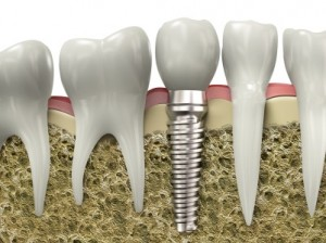 dental implants Parkton